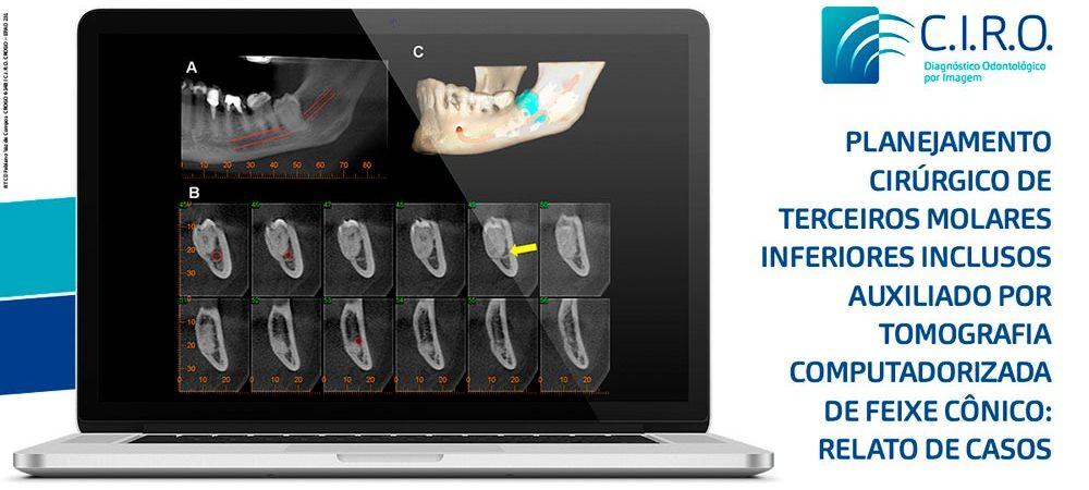 Planejamento Cirúrgico de terceiros molares