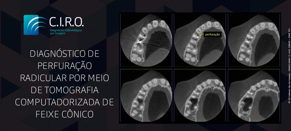 Matéria-Diagnóstico-de-Perfuração-Radicular-por-meio-de-tomografia-computadorizada-de-Feixe-Cônico