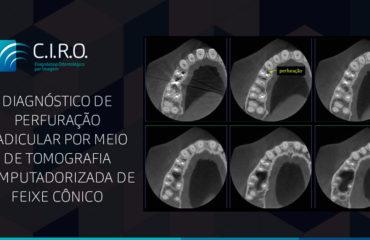 Diagnóstico de perfuração radicular por meio de tomografia computadorizada de feixe cônico