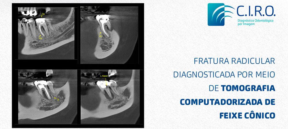Matéria-fratura-Radicular-Diagnosticada-por-meio-de-Tomografia-Computadorizada-de-Feixe-Cônico-1200x628