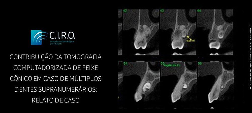 Contribuição da tomografia computadorizada de feixe conico