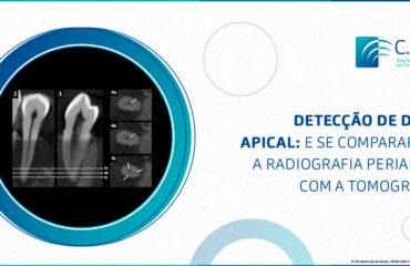 Detecção de delta apical: e se compararmos a radiografia periapical com a tomografia?